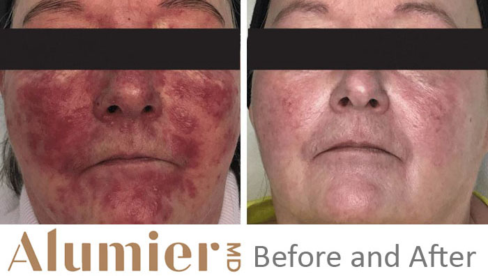 Alumier MD Before and After 1