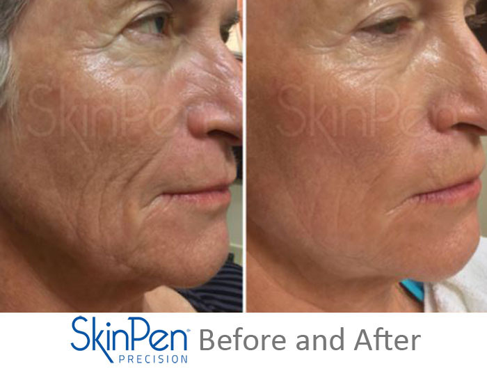 SkinPen Before and After 1